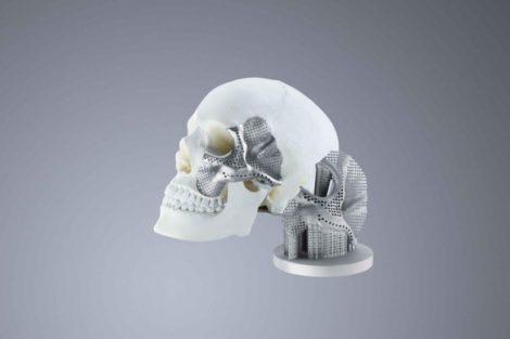 Conmet Schädel 3D-Druck